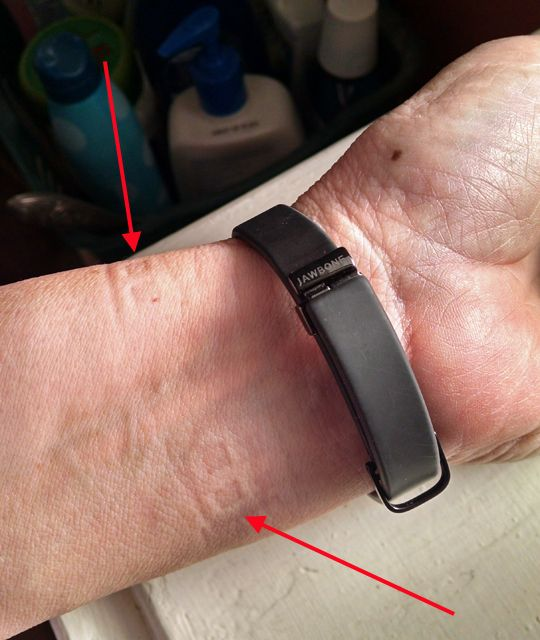 not my wrist with sensor imprints